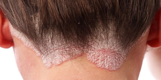 Scalp diseases urmus Choice Image